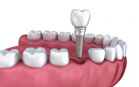 What is a dental crown and what are its prices?